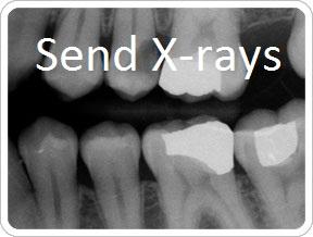 Send Digital X-rays to Dr. Phil Parham